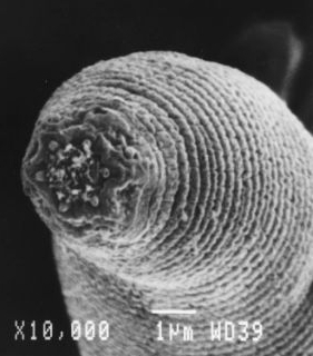 Electronenmicroscopische opname van H. mephisto. Bron en copyright: Nature.