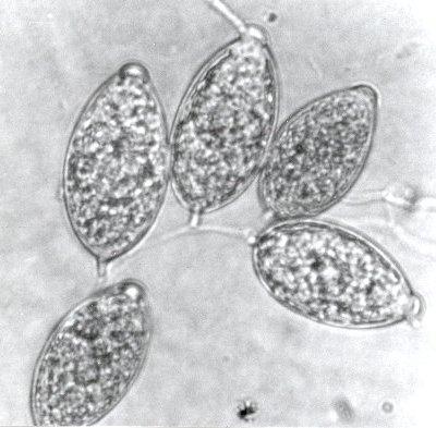 Zoosporangien van Phytophthora ramorum. Foto: copyright Plantenziektenkundige Dienst, Wageningen.