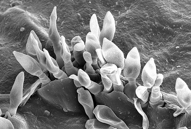 Scanning Elektronen Microscopische opname van appelschurft op het blad van sierappel. Foto: Charles Krause, USDA/ARS; Public Domain.