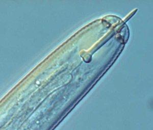 kop met stekel van Globodera rostochiensis. Foto: Hans Helder; copyright Laboratorium voor Nematologie, Wageningen Universiteit.