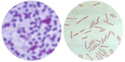 Gramkleuring bij bacterien. Foto's: J.D. Janse; Copyright: CABI Publishing/Plantenziektenkundige Dienst; Bron: Phytobacteriology - Principles and Practice, J.D. Janse, 2005.
