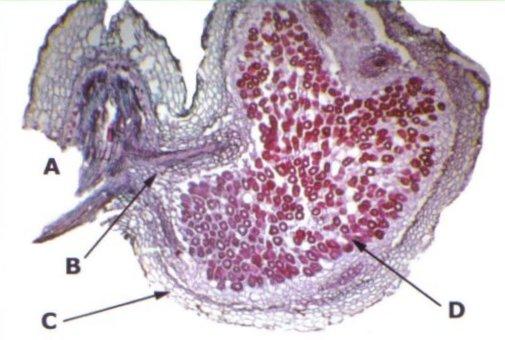 Dwarsdoorsnede van een Rhizobium-wortelknolletje van witte klaver (Trifolium repens). Foto: J.D. Janse; Copyright: CABI, Wallingford, UK/Plantenziektenkundige Dienst, gebruikt met toestemming; Bron: Phytobacteriology - Principles and Practice, J.D. Janse, 2005.